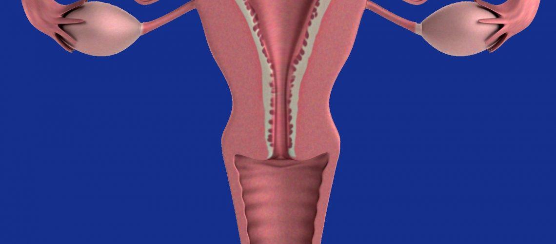 maternica endometrioza